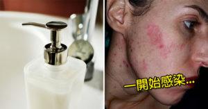 她用「公廁洗手乳」後整張臉紅腫 美麗臉蛋竟被細菌吃成凹陷「殭屍皮膚」