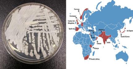 台灣曾出現個案!「超級黴菌」以驚人速度攻佔全球 50%中獎者「撐不過3個月」