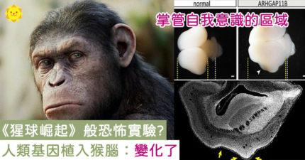《猩球崛起》成真?將人類基因植入猴腦 科學家發現「腦部變大了」