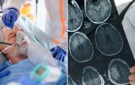 研究證實武肺恐造成「腦損傷」 專家:「輕症者」最危險!
